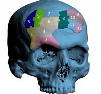 Cranioplasty with SmartBone