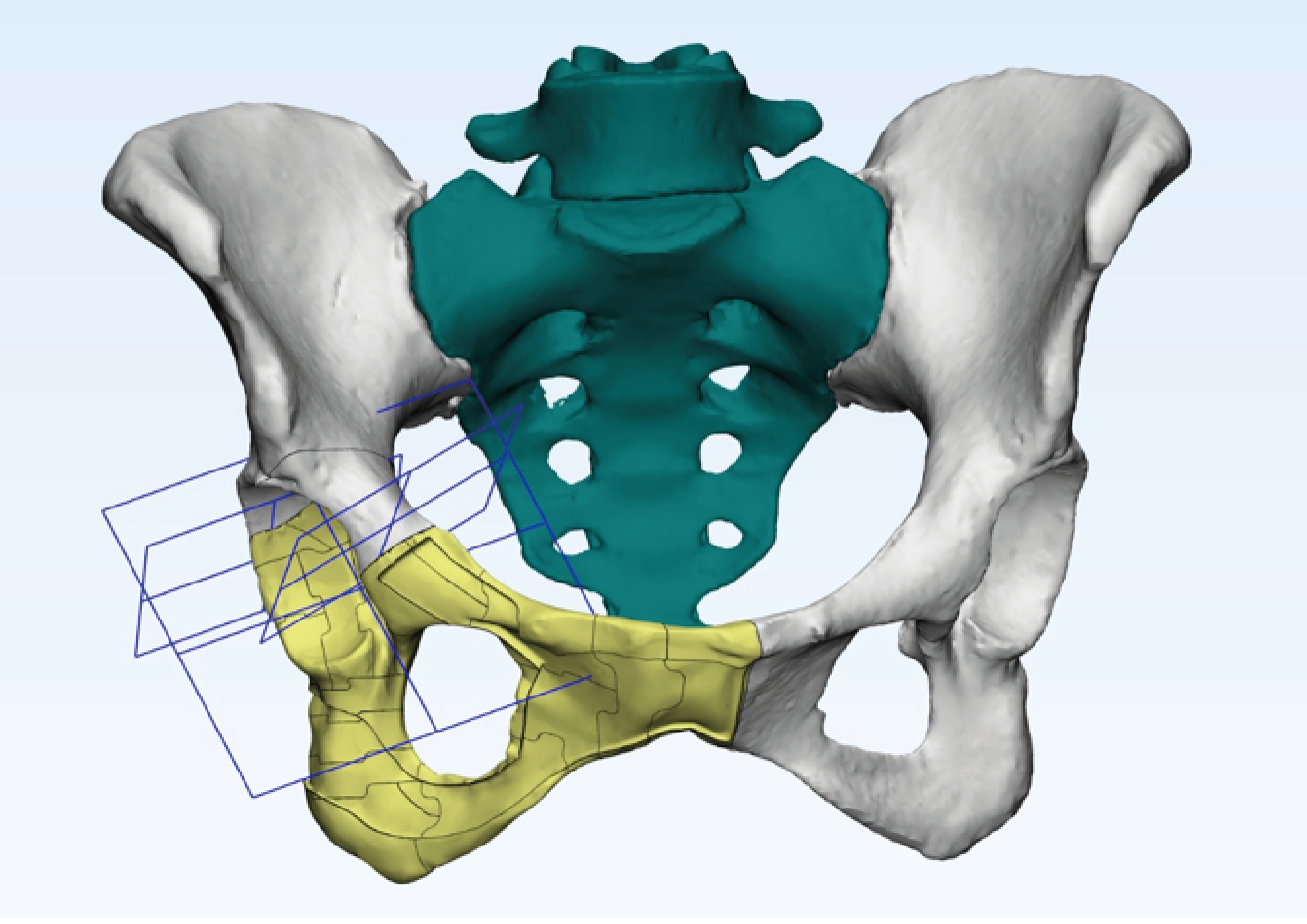 Oncological Hip Reconstruction performed with Smartbone On demand